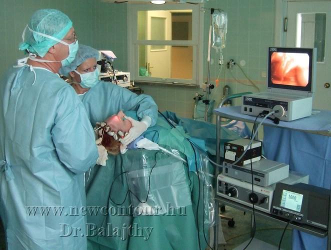műtét a műtét során