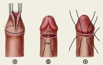 nincs izgatási erekció hogyan lehet összehúzni a péniszét