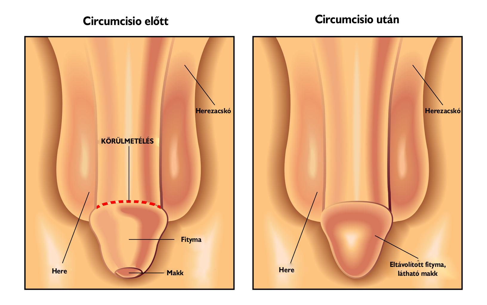 férfi betegségek pénisz