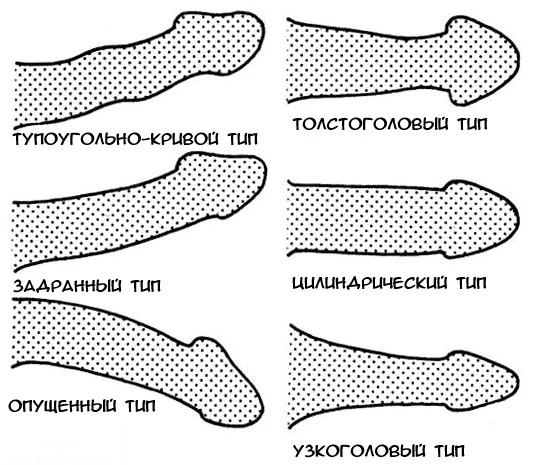 milyen formák vannak péniszek