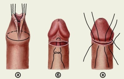 az erekció során a pénisz feje pirosra vált