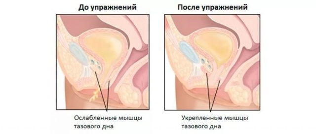 Kiderült, miért kell a pihenő két orgazmus között - HáziPatika