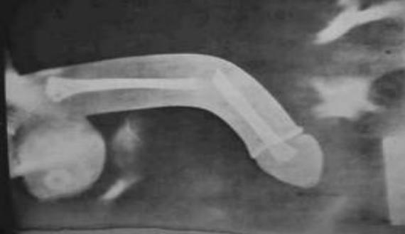 van-e erekció prosztata nélkül mutatta a péniszét a csevegésben