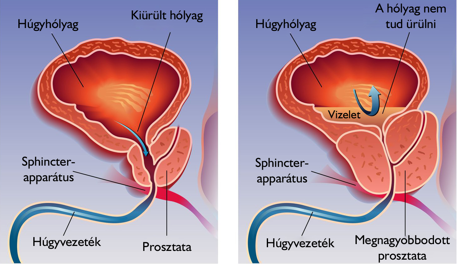 a prosztata az erekció során fáj