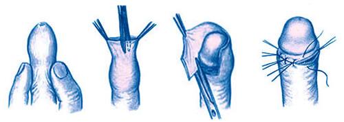 erekció fimózissal típusú erekció a lányokban