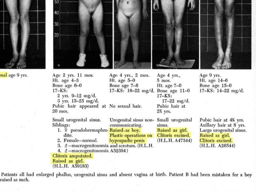 Fitymatúltengés - Urológiai megbetegedések