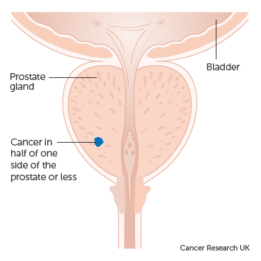 Prosztata szexuális funkció Antibiotikum Prostatitis a férfiak véleménye