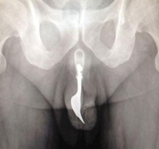 idegen pénisz