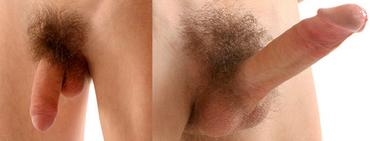 hogyan lehet visszafogni a pénisz erekcióját