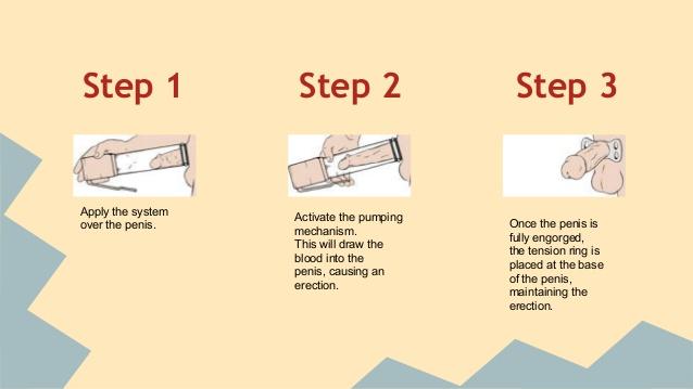 Péniszpumpa használata és előnyei: A legfontosabb információk egy helyen!