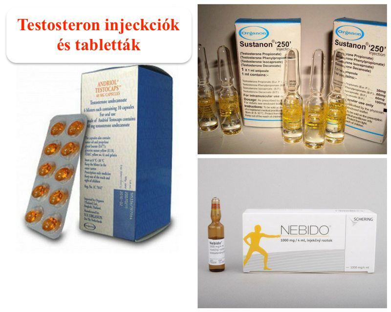 Tesztoszteron pótlás különböző formái (tesztoszteron gél, tesztoszteron injekció, HCG terápia).
